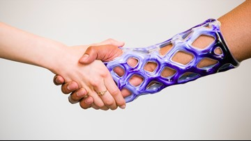 Innovative New Arm Cast is Waterproof, Lightweight and Breathable