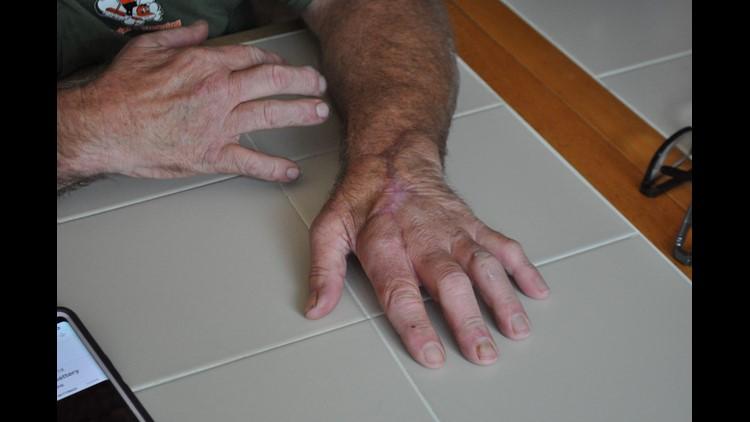 Watts hand 2