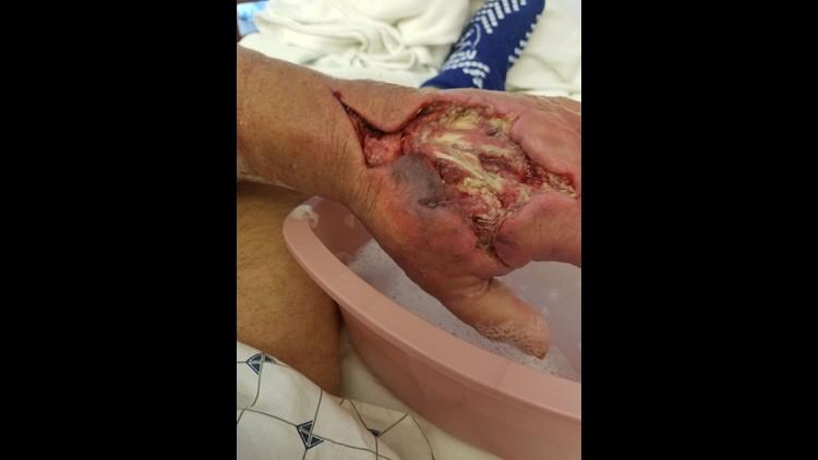 Watts hand wound