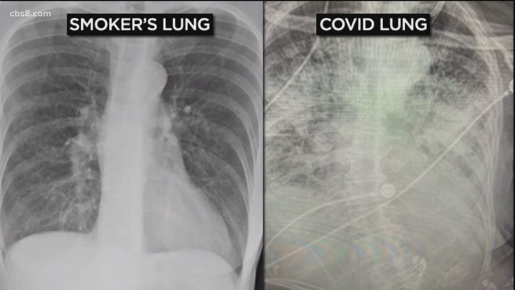 COVID Lung: Are COVID-19 patient's lungs worse than smokers?