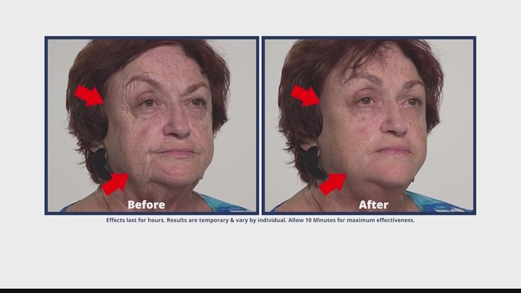Let Plexaderm reduce key signs of aging