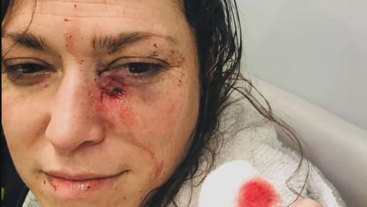 Alicia Clarke attacked