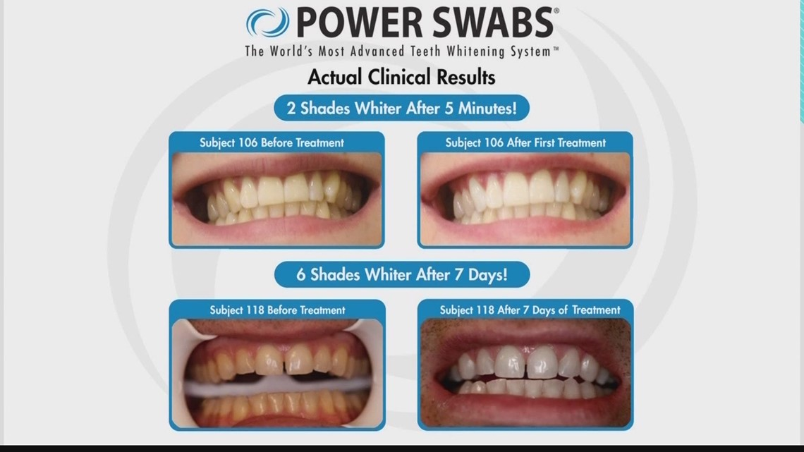 Let Power Swabs help you get a whiter smile