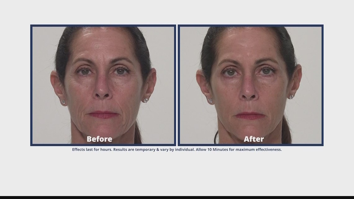 Get rid of undereye bags in minutes with Plaxaderm