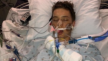 'It is not worth it' | California mom offers warning about vaping after son hospitalized with lung illness