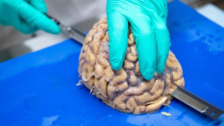cte brain research_1535123187697.jpg.jpg