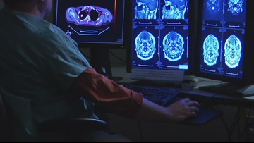 New Book Details How Alzheimers & Depression Could Be Alleviated Through 'Brain Hacking'