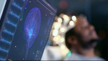 Device that lures tumor cells out of brain gains FDA breakthrough status